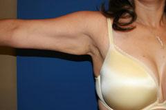 liposuction patient after image