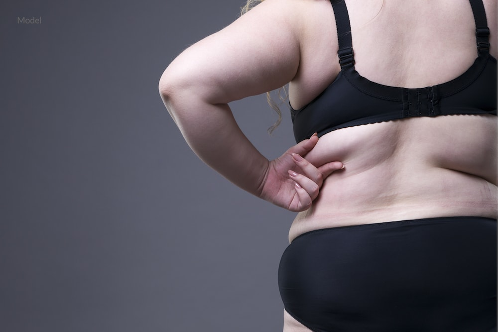 Woman grasping fat on her back that could benefit from bra fat removal surgery