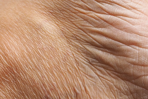 Up close view of wrinkles that can be treated with non-surgical options.